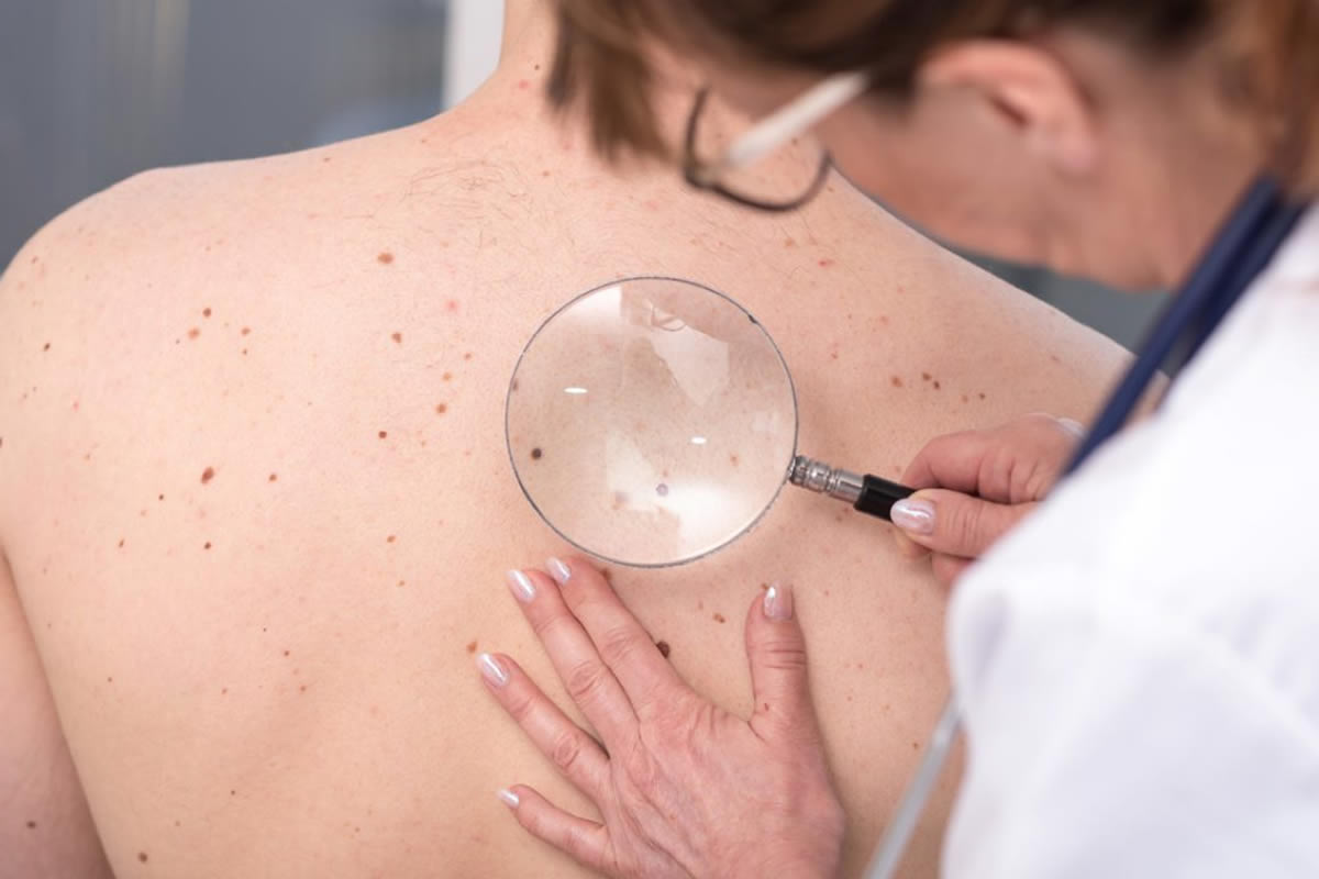 Three Reasons You Want to Detect Skin Cancer Early