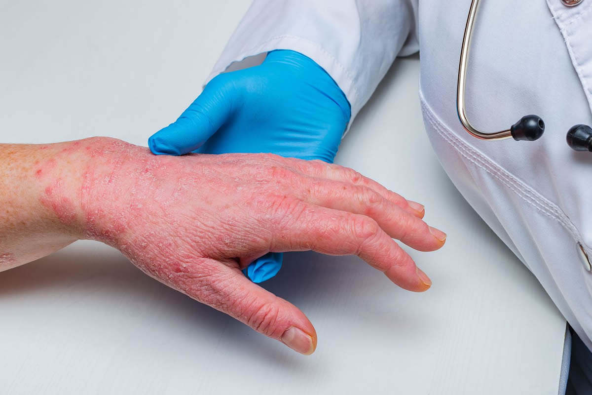 Five Skin Diseases Your Dermatologist Can Treat