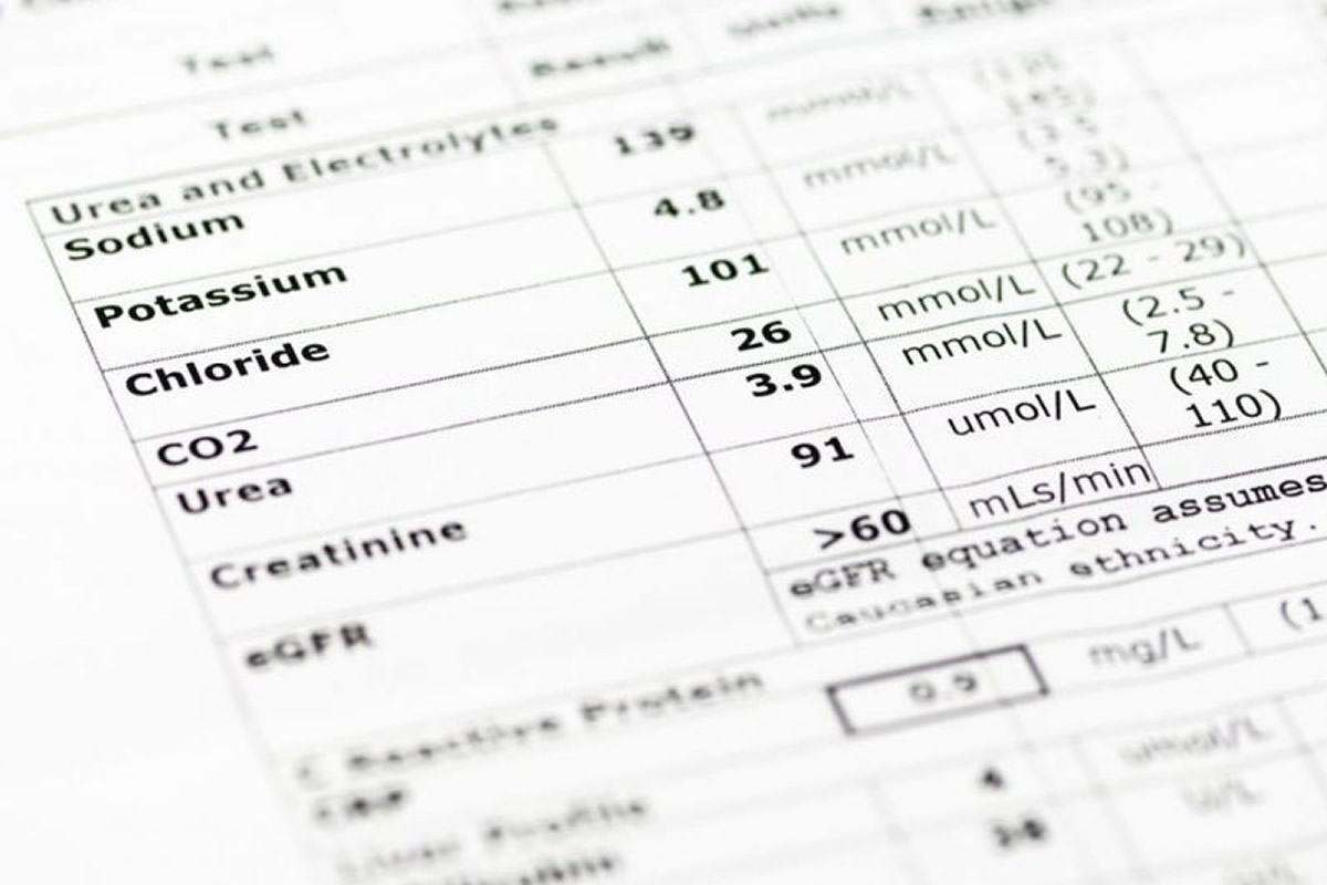 Three Common Questions about Lab Test Results