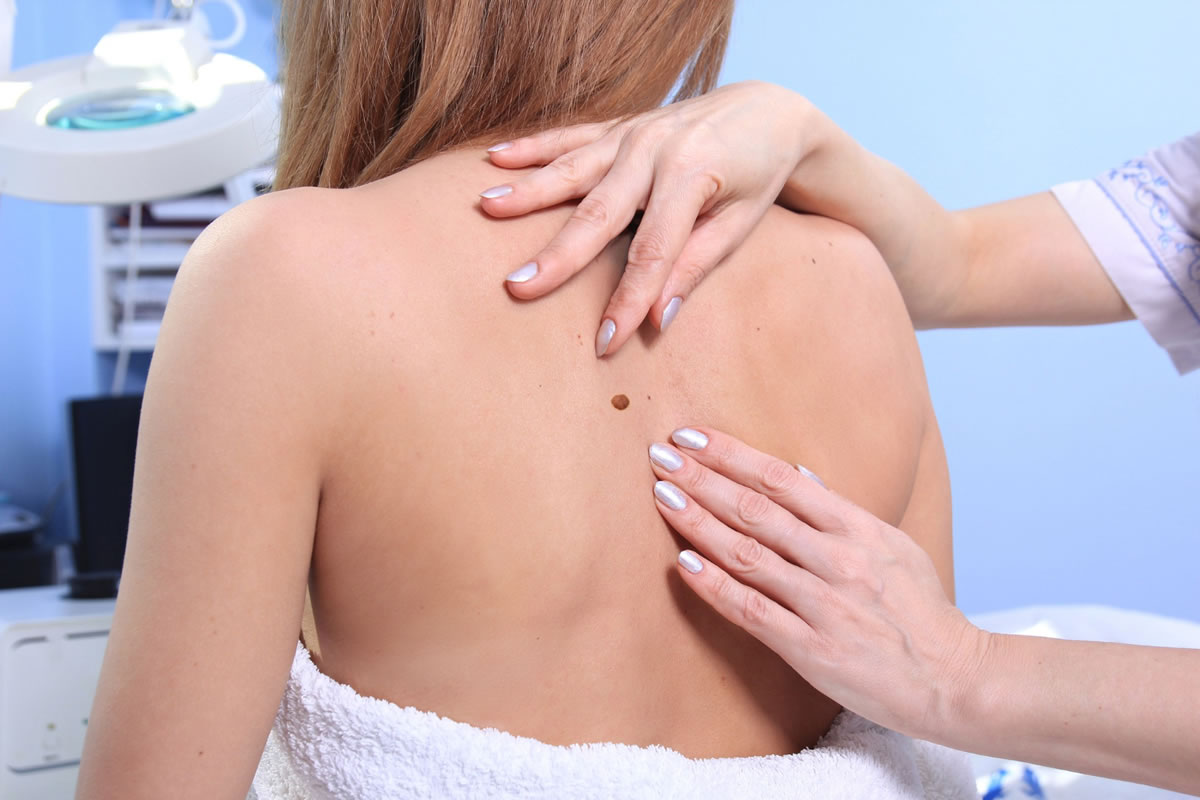 Why You May Need to Have a Skin Biopsy Test Done