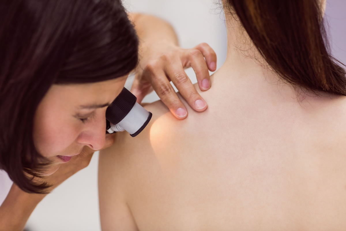 Why You Need to Prioritize Skin Checks